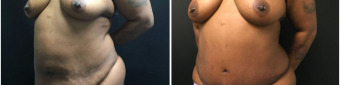 abdominoplasty-fat-transfer-to-breasts-sugery-nyc-before-after-1-2
