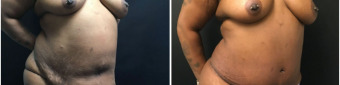 abdominoplasty-fat-transfer-to-breasts-sugery-nyc-before-after-1-3