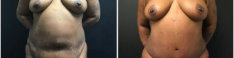 abdominoplasty-fat-transfer-to-breasts-sugery-nyc-before-after-1-1