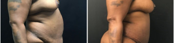 abdominoplasty-fat-transfer-to-breasts-sugery-nyc-before-after-1-4