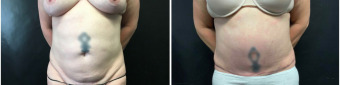 abdominoplasty-sugery-nyc-before-after-1-1