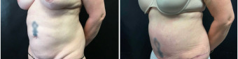 abdominoplasty-sugery-nyc-before-after-1-2
