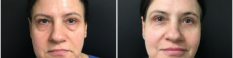 blepharoplasty-sugery-nyc-before-after-1-1