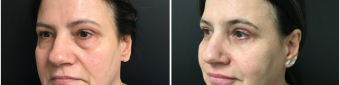 blepharoplasty-sugery-nyc-before-after-1-2