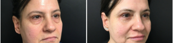 blepharoplasty-sugery-nyc-before-after-1-3