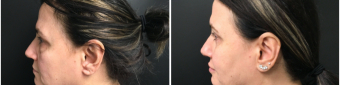 blepharoplasty-sugery-nyc-before-after-1-4