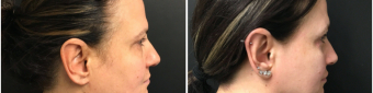 blepharoplasty-sugery-nyc-before-after-1-5