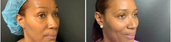 blepharoplasty-sugery-nyc-before-after-2-3