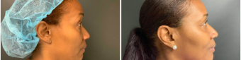 blepharoplasty-sugery-nyc-before-after-2-5