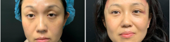 blepharoplasty-sugery-nyc-before-after-3-1