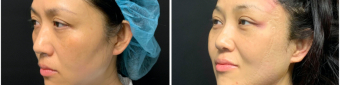 blepharoplasty-sugery-nyc-before-after-3-2