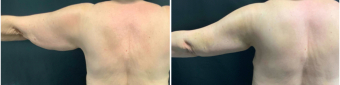brachioplasty-surgery-nyc-before-after-1-1