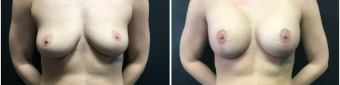 breast-augmentation-mastopexy-surgery-nyc-before-after-1-1