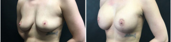 breast-augmentation-mastopexy-surgery-nyc-before-after-1-2