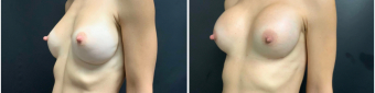 breast-augmentation-mastopexy-surgery-nyc-before-after-2-2