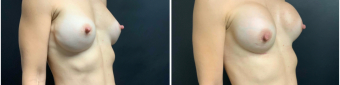 breast-augmentation-mastopexy-surgery-nyc-before-after-2-3