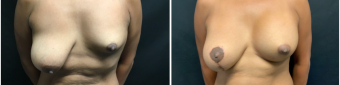 breast-augmentation-mastopexy-surgery-nyc-before-after-3-1