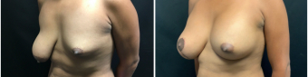 breast-augmentation-mastopexy-surgery-nyc-before-after-3-2