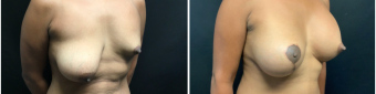 breast-augmentation-mastopexy-surgery-nyc-before-after-3-3