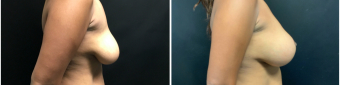 breast-augmentation-mastopexy-surgery-nyc-before-after-3-5