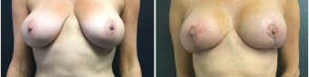 breast-augmentation-mastopexy-surgery-nyc-before-after-4-1