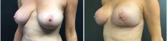breast-augmentation-mastopexy-surgery-nyc-before-after-4-2