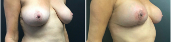 breast-augmentation-mastopexy-surgery-nyc-before-after-4-3