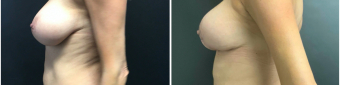 breast-augmentation-mastopexy-surgery-nyc-before-after-4-4