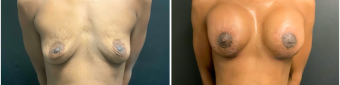 breast-augmentation-mastopexy-surgery-nyc-before-after-5-1