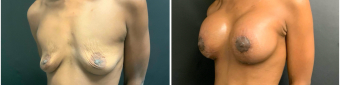 breast-augmentation-mastopexy-surgery-nyc-before-after-5-2