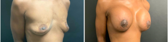 breast-augmentation-mastopexy-surgery-nyc-before-after-5-3