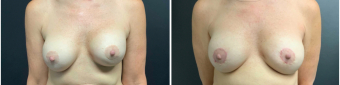 breast-augmentation-mastopexy-surgery-nyc-before-after-6-1