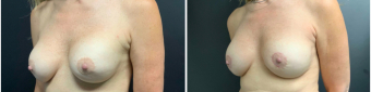 breast-augmentation-mastopexy-surgery-nyc-before-after-6-2