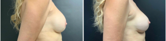 breast-augmentation-mastopexy-surgery-nyc-before-after-7-1