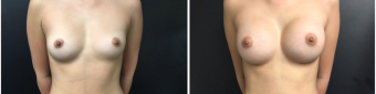 breast-augmentation-sugery-nyc-before-after-1-1