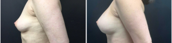 breast-augmentation-sugery-nyc-before-after-2-3