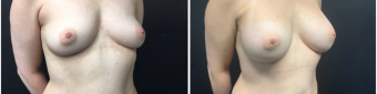 breast-augmentation-sugery-nyc-before-after-2-4