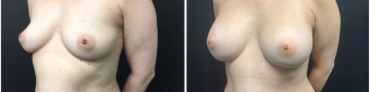 breast-augmentation-sugery-nyc-before-after-2-5