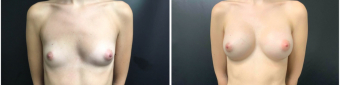 breast-augmentation-sugery-nyc-before-after-3-1