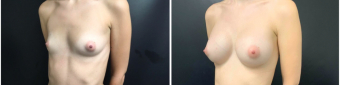 breast-augmentation-sugery-nyc-before-after-3-5