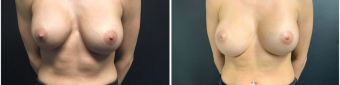 breast-implants-exchange-sugery-nyc-before-after-1-1