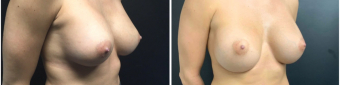 breast-implants-exchange-sugery-nyc-before-after-1-4