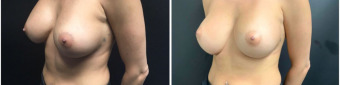 breast-implants-exchange-sugery-nyc-before-after-1-5