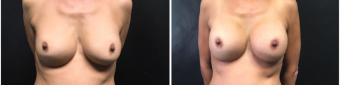 breast-implants-exchange-sugery-nyc-before-after-2-1