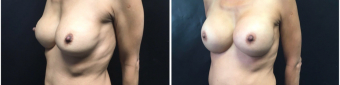 breast-implants-exchange-sugery-nyc-before-after-2-5