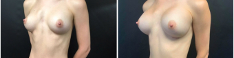 breast-implants-exchange-sugery-nyc-before-after-3-4