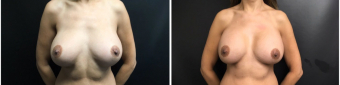 breast-implants-exchange-sugery-nyc-before-after-4-1