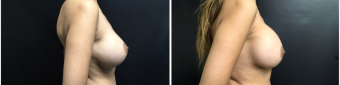 breast-implants-exchange-sugery-nyc-before-after-4-2