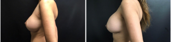 breast-implants-exchange-sugery-nyc-before-after-4-3
