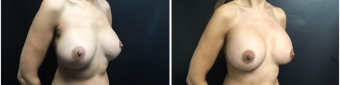 breast-implants-exchange-sugery-nyc-before-after-4-4